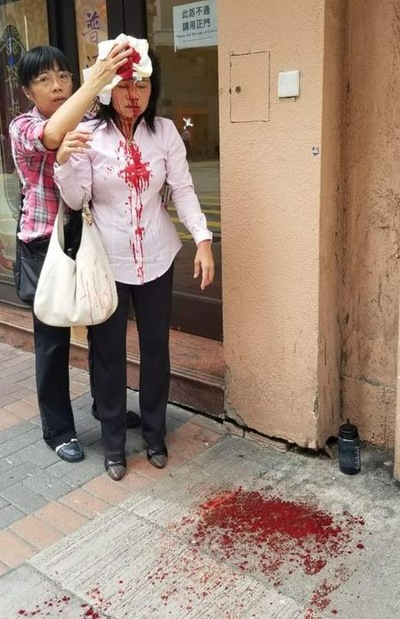 Innocent Falun Gong Woman Savagely  Attacked on the Streets of Hong Kong by CCP Thugs
